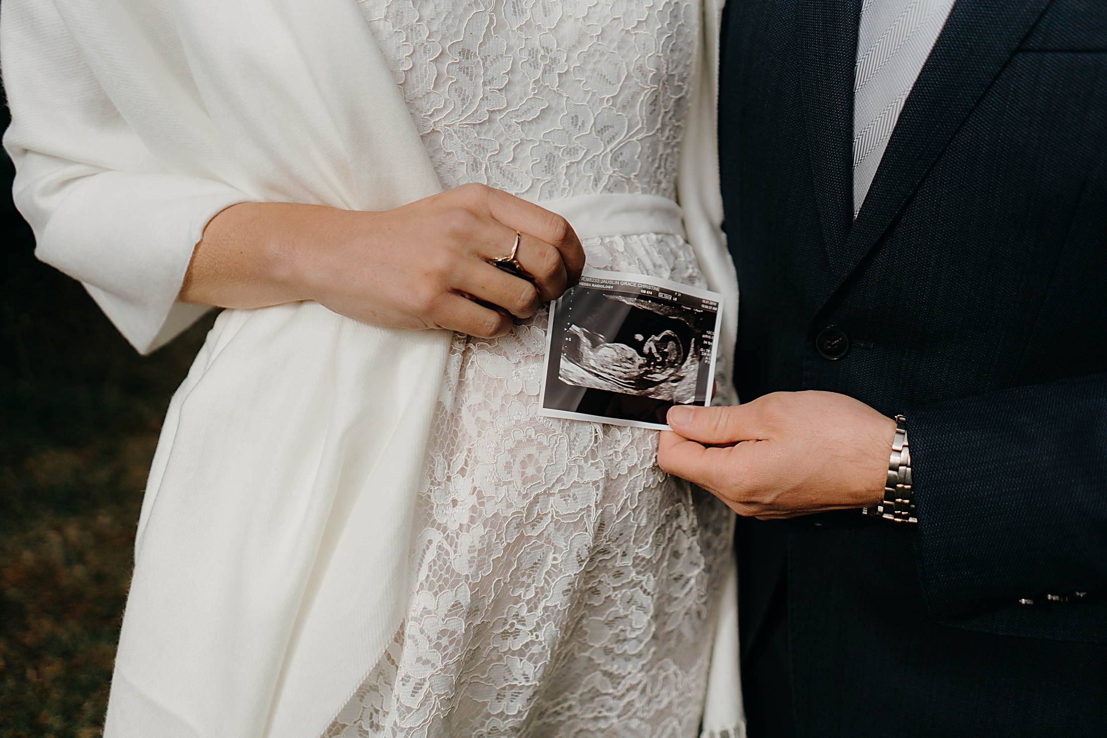 bride, groom & ultrasound